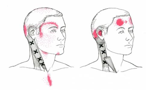 胸鎖乳突筋と後頭部の痛み