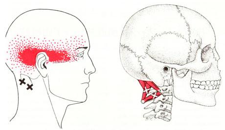 しめつけられる頭痛