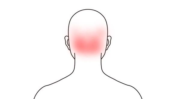 後頭部の痛み